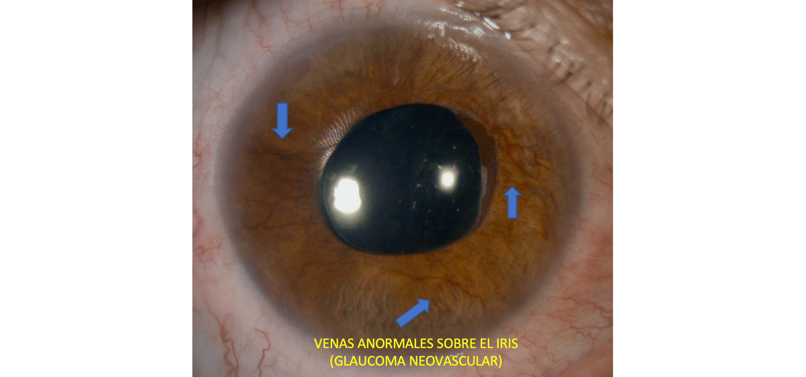 Glaucoma Neovascular